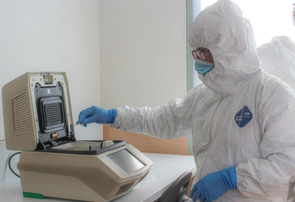 COVID-19 prueba de descarte coronavirus Lima (1)
